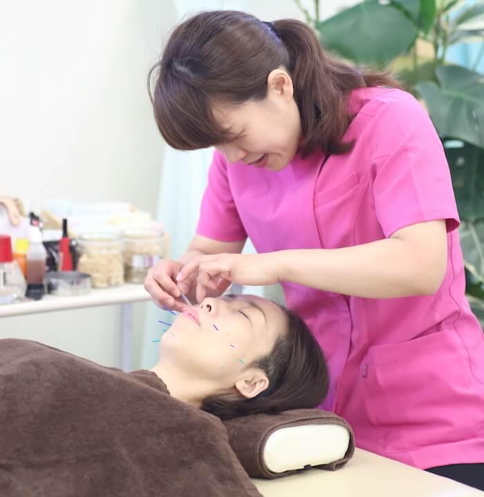 女性鍼灸施術風景